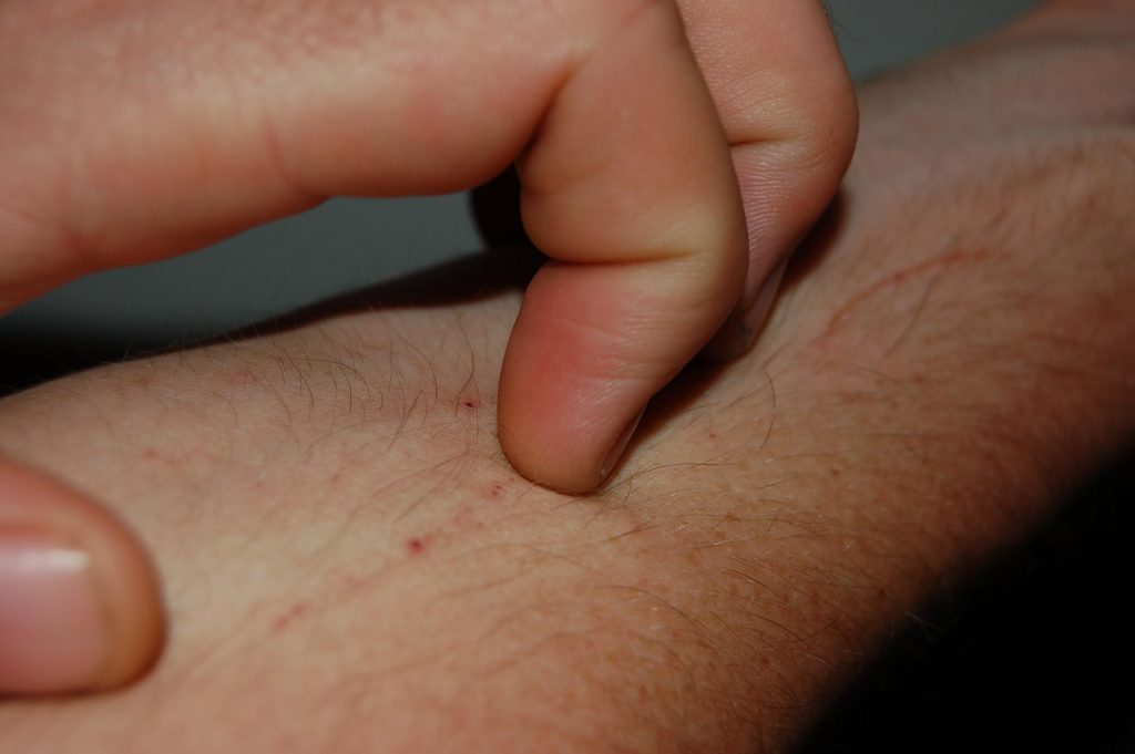 What Can Cause Itchy Skin without a Rash? – In-depth Answer