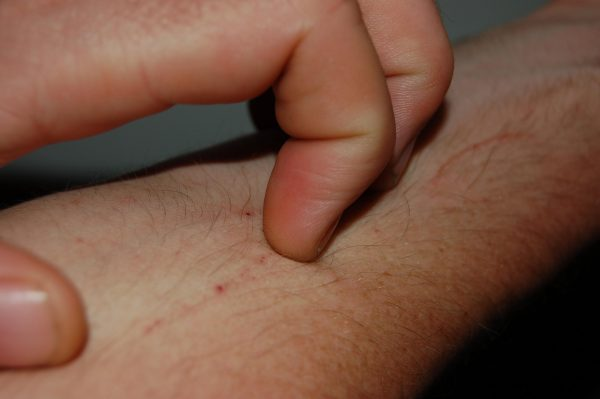 What Can Cause Itchy Skin without Rash?