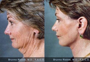 How to Tighten Skin under Chin after Weight Loss – Detailed Answer