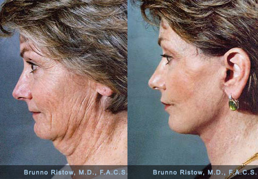 How to Tighten Skin under Chin after Weight Loss