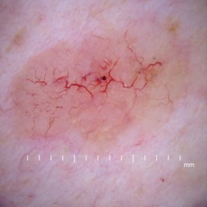 Which Surgical Procedure Removes Superficial Skin Lesions with Scraping?