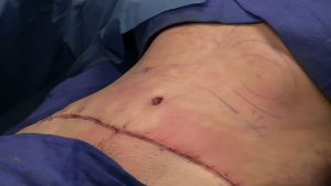 How to Prevent Loose Skin After Gastric Bypass – In-depth Answer